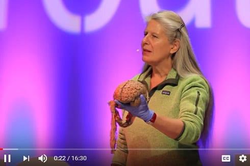 04 Video Neuroanatomical Transformation